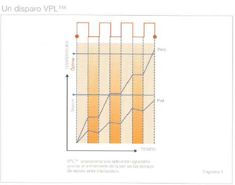 Depilación VPL, fotodepilación