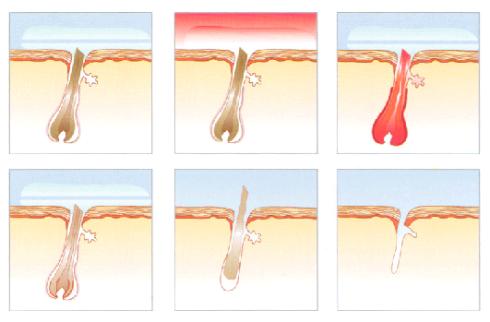 Eliminación del vello con depilación VPL