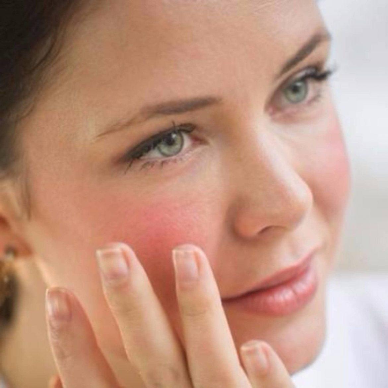 Cómo eliminar las rojeces en la piel, consulta en tu centro de belleza en Madrid