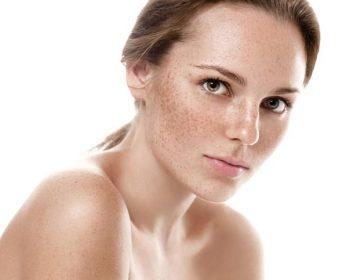 Evita manchas en la piel esta primavera, consulta en tu centro de belleza y estética en Madrid